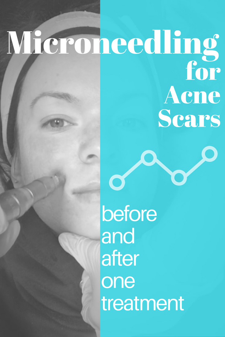 Microneedling for Acne Scars  Before and After One Microneedling