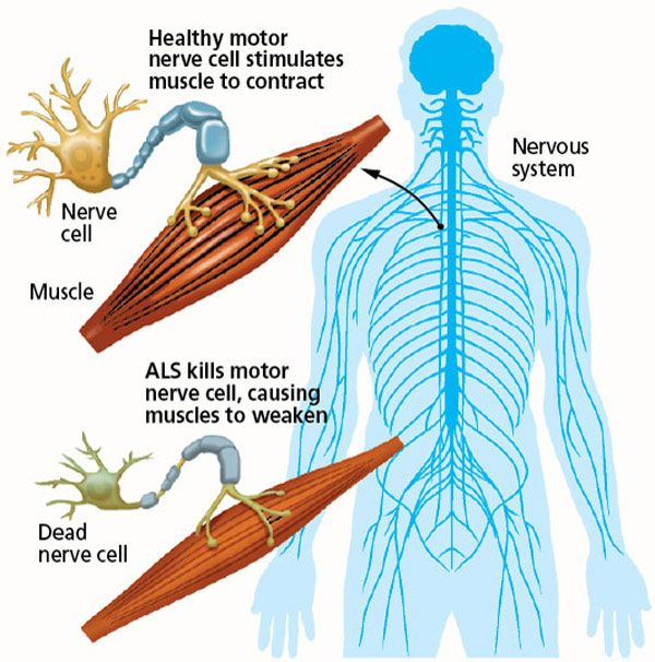 Graphic What Is Als Amyotrophic Lateral Sclerosis