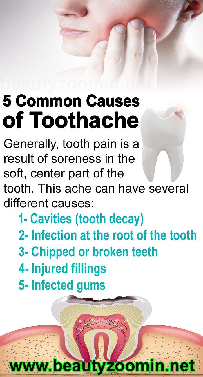 Pin On Smiles And Teeth+organic Natural Advice