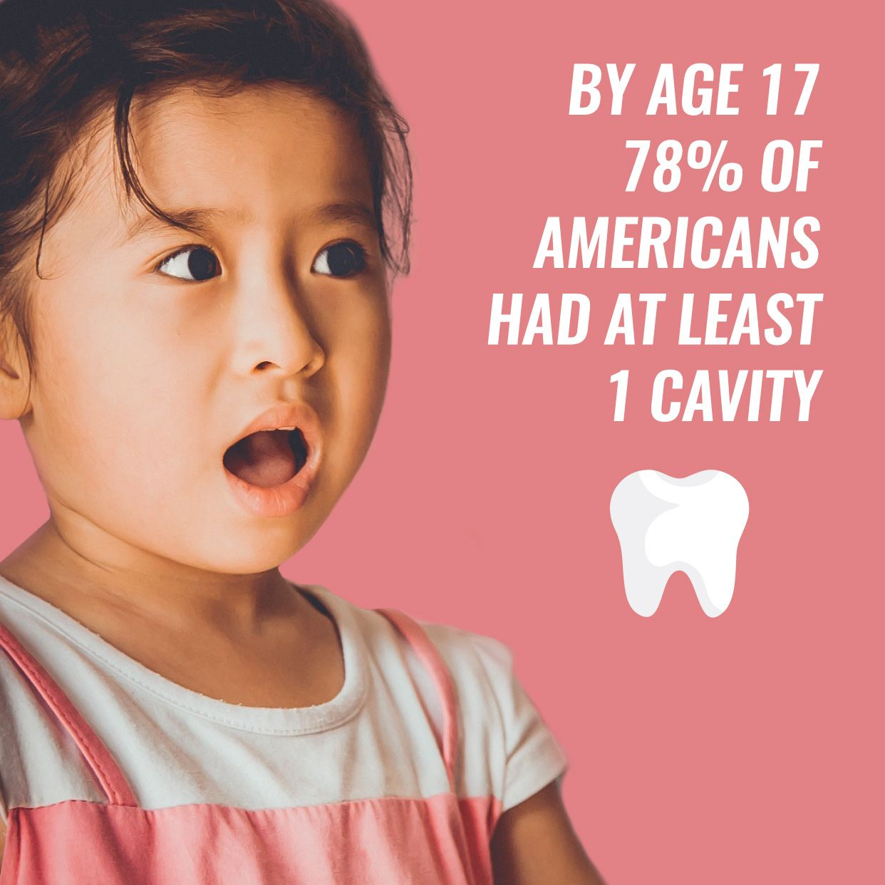 Dental Fact 78 of us had AT LEAST one cavity by the age