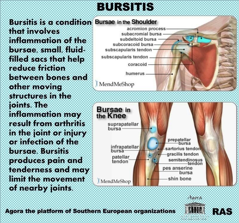Just Found I Have This Knee Bursitis Health Pinterest