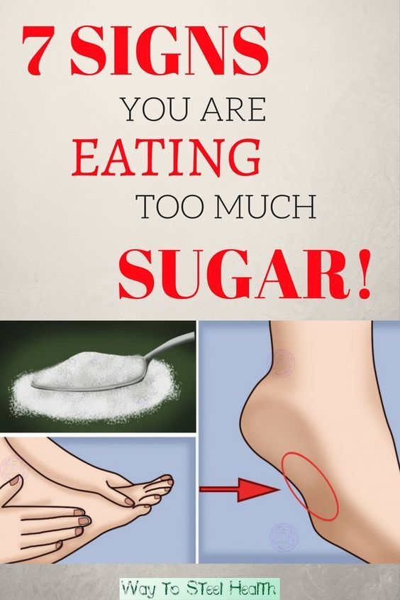 7 SIGNS YOU ARE EATING TOO MUCH SUGAR! & YOU MUST IMMEDIATELY STOP THE INTAKE  #wieghtloss  #solutio...
