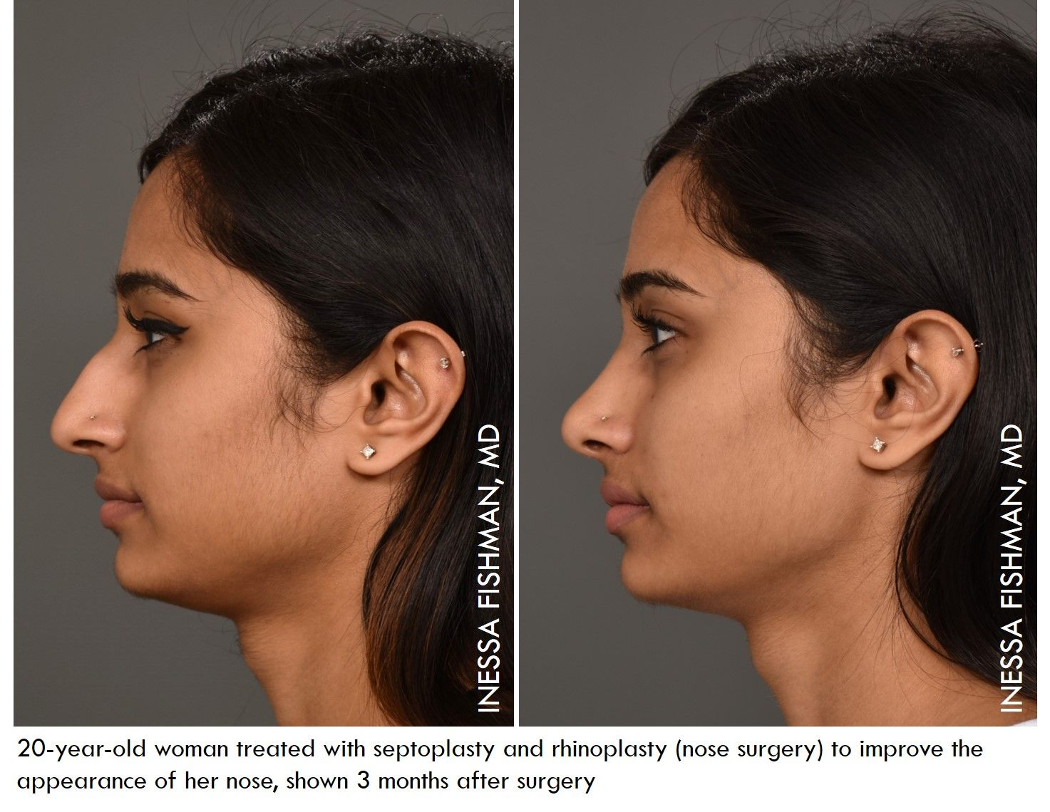 Rhinoplasty Or Nose Surgery Is One Of Our Most Favorite Procedures Both For Its Exacting Demands And Artistry This Nose Surgery Plastic Surgery Rhinoplasty