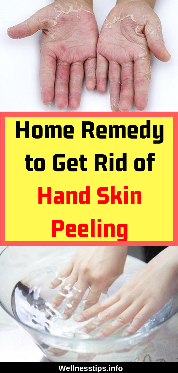 Home Remedy To Get Rid Of Hand Skin Peeling Homeremedies Naturalremedies Remedy Skin Skincare Peeling Hea Peeling Skin Skin Peeling On Hands Hand Care