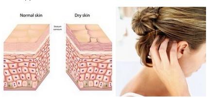 Seboreisk eksem - flass - fet hodebunn - hvordan behandle ?  Ganske mange kvinner og menn har en høy sekresjon av sebum, som forårsaker at håret raskt blir skittent og mister sitt utseende. Økt utskillelse av fett (seborrhea) er også en predisponerende bakgrunn for fremveksten av en ubalanse av mikrofloraen i huden og i hodebunnen, noe som kan føre til komplikasjoner - seboreisk dermatitt, som er karakterisert som flass, kløe og betennelse i hodebunnen.