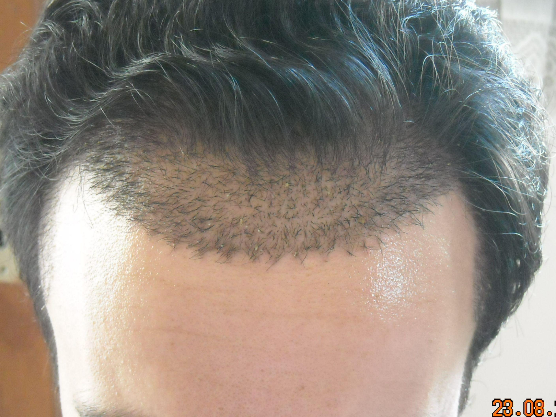 Dagen som håret opererades från patient som gjort en strip operation på Cypern. Observera att här har man placerat hårsäckarna sedan tar det upp emot ett år innan håret växer ut igen.