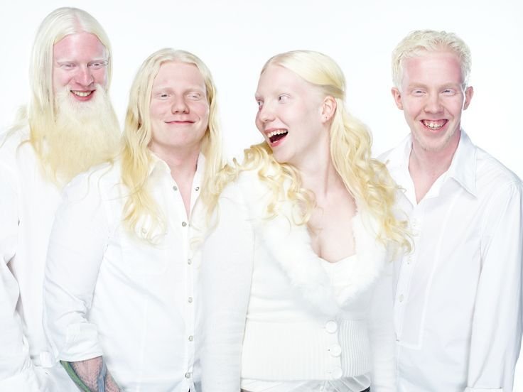 R Magazine On Twitter Albinism Albino Human Beauty