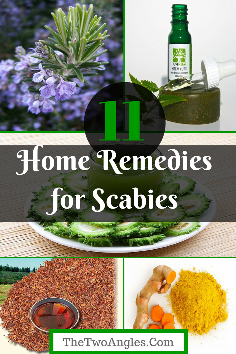 Home Remedies and Treatments to Get Rid of Scabies Naturally