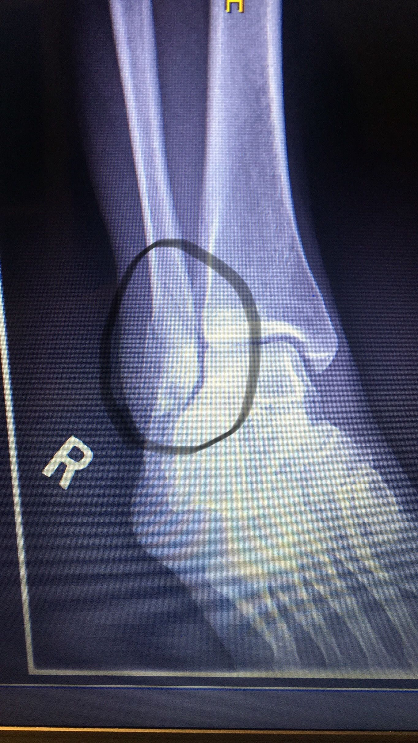 Broken fibula ankle fracture with images ankle