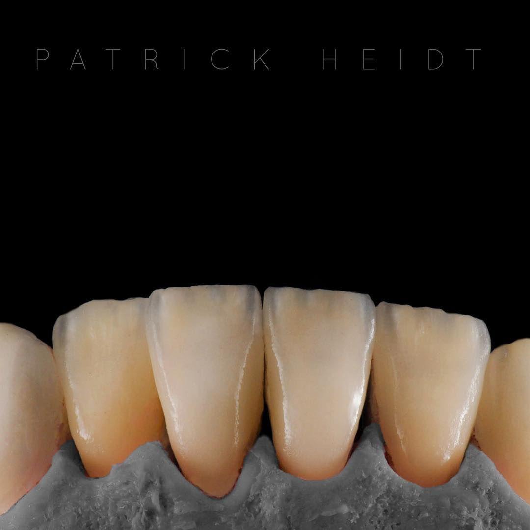 """Patrick Heidt on Instagram: """"8. Bake Veneers Creation CT #dentist"""