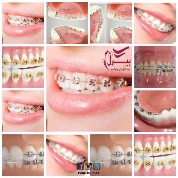 تقويم الاسنان بجميع انواعه الملون المخفي و الشفاف للحصول على ابتسامة جذابة تقويم الاسنان يساعد اسنانك باستعادة ترتيبها لتظهر بالمظهر المط Ear Cuff Ear Earrings