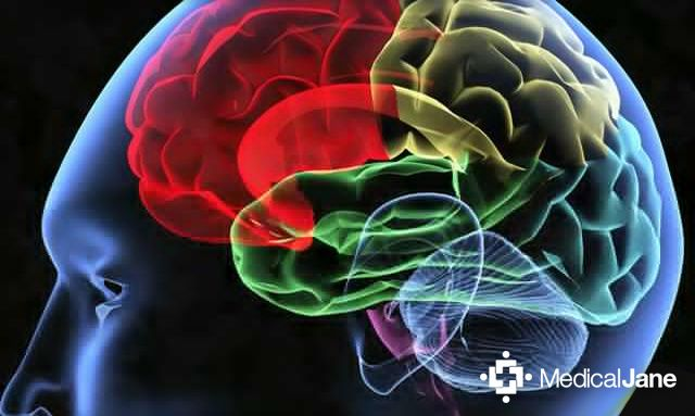 CBD May Prevent Damage Caused By Iron Buildup In Brain ...