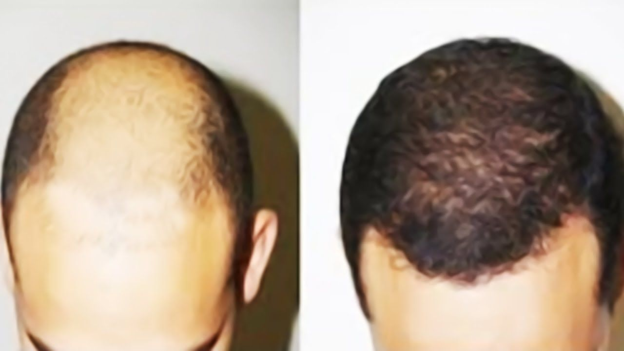 Grow Hair On Bald Head Natural Hair Loss Grow Long Hair Natural Hair Loss Treatment