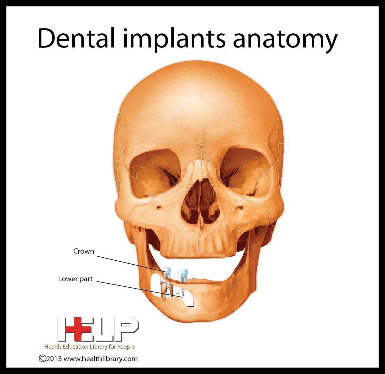 Dental Implants Anatomy | Dental | Pinterest | Dental implants ...