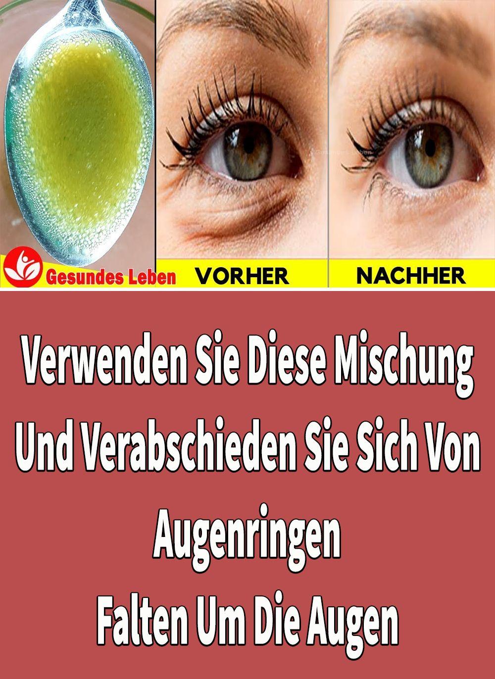 Photo of Verwenden Sie Diese Mischung Und Verabschieden Sie Sich Von Augenringen – Falten Um Die Augen