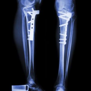 Multiple Fractures After A Fall Providence Place Has Several Mdh Findings Of Neglect Of Health Care Providence Place Neglect Health Care