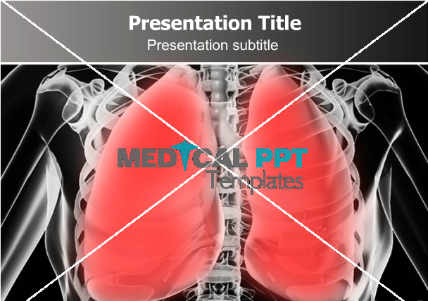 pneumonia #powerpoint #template. greate template for presentation, Presentation templates