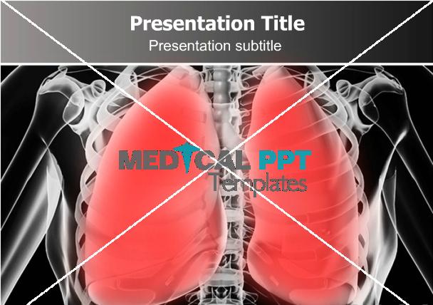 Pneumonia powerpoint template greate template for presentation on greate template for presentation on pneumonia pulmonary toneelgroepblik Gallery