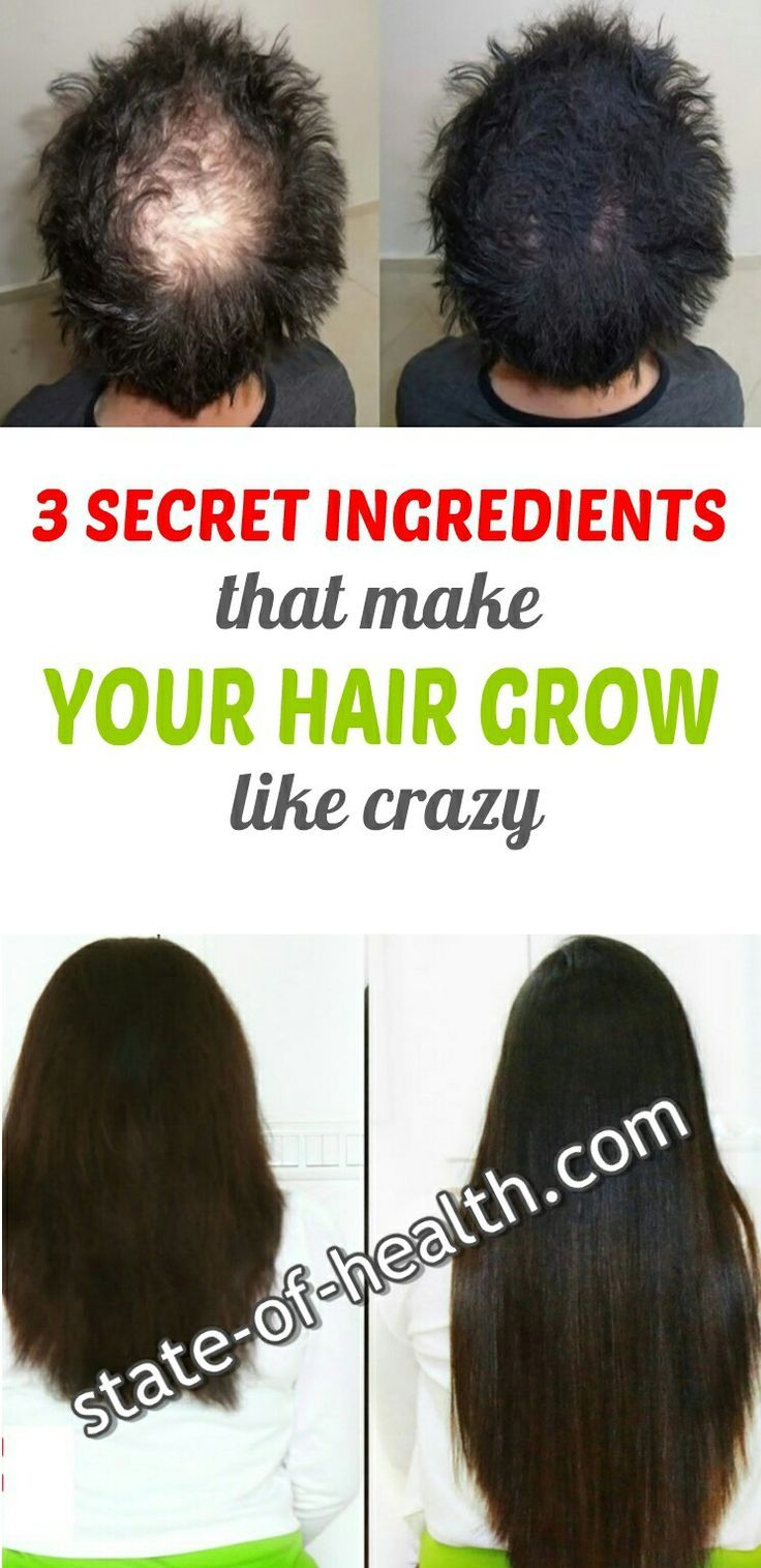 12 Secret Ingredients That Make Your Hair Grow Like Crazy  Grow