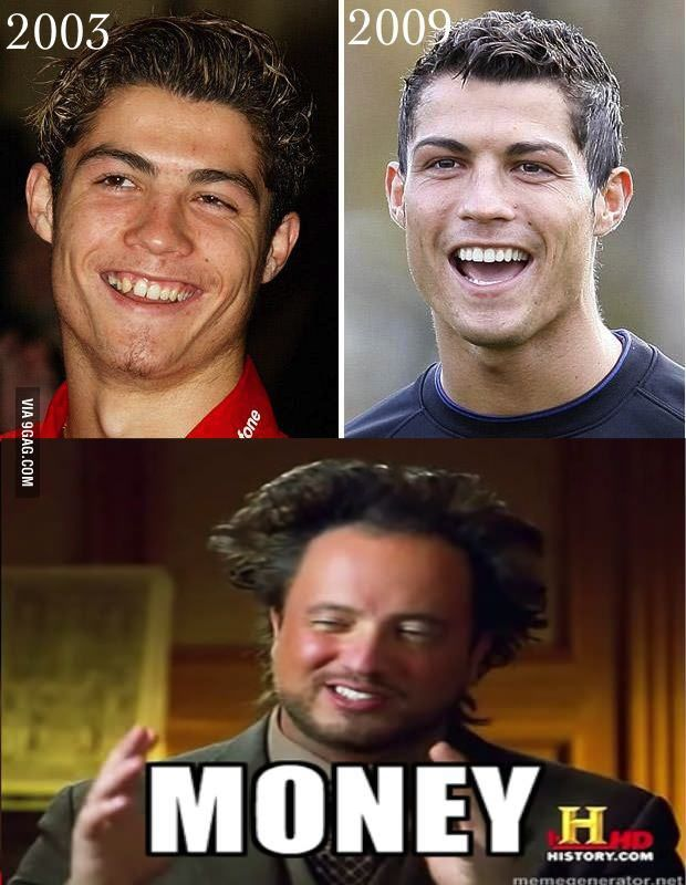 Cristiano Ronaldo Braces : cristiano, ronaldo, braces, Cristiano, Ronaldo, Before, After, Money, Ronaldo,