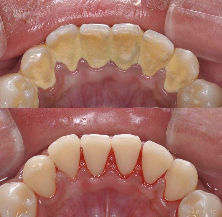 Pin De Paola Chávez De Rosales En Poria Edalat Blanqueamiento Dental Casero Higienista Dental Cuidado Dental
