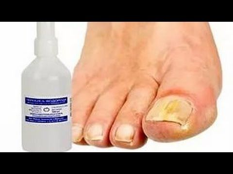 Перекись водорода от грибка ногтей на ногах - как вылечить запущенную форму ванночками и профилактика