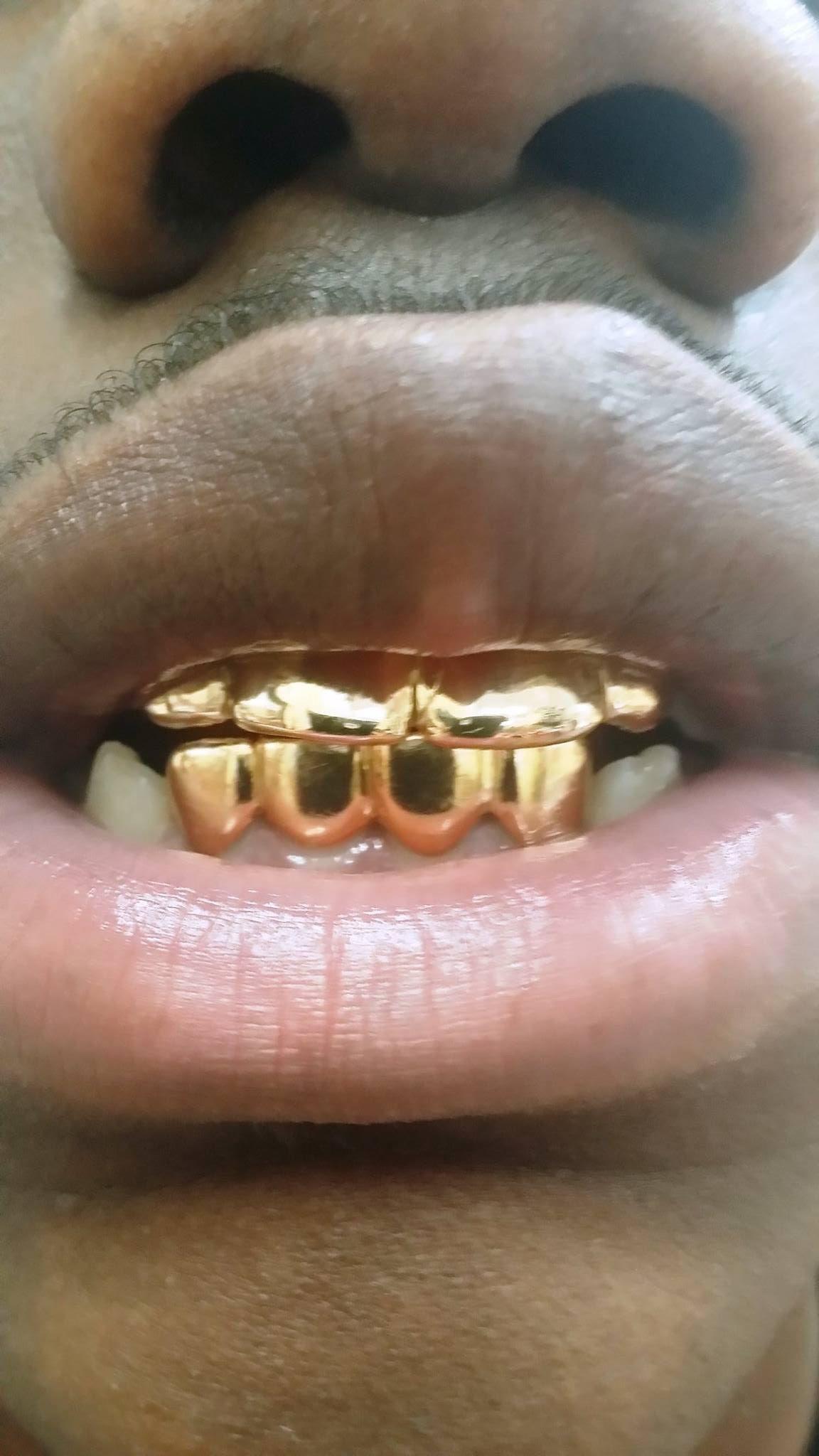 Gold Teeth Miami : teeth, miami, Grillz, Miami, Diamond, Grillz,