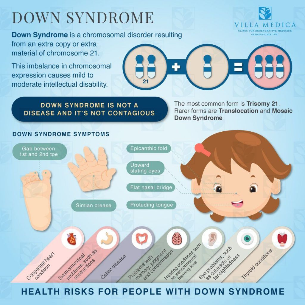 Facts About Down Syndrome (Infographic) | Down syndrome facts, Down syndrome  kids, Down syndrome
