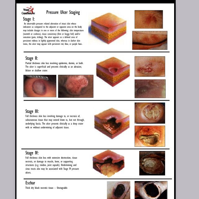 Wound stages | Nursing | Wound care, Pressure ulcer staging