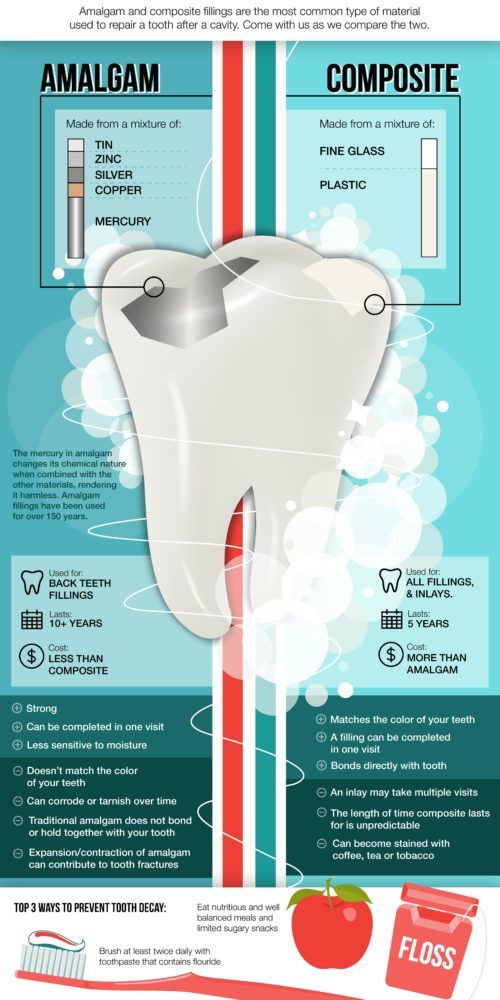 Did You Know There Is More Than One Kind Of Filling For Your Cavity Check Out This Infographic To Dental Hygiene Student Dental Hygiene School Dental Fillings