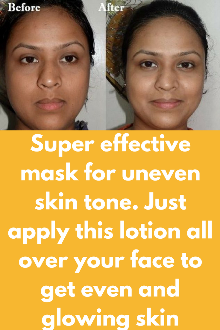 Super effective mask for uneven skin tone Just apply this lotion