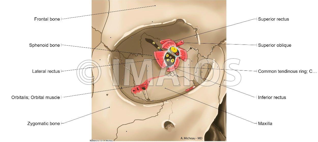 Common tendinous ring; Common anular tendon (Zinn) - Extraocular ...