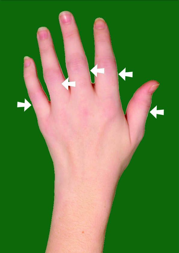 swollen finger joints medical info pinterest health tips