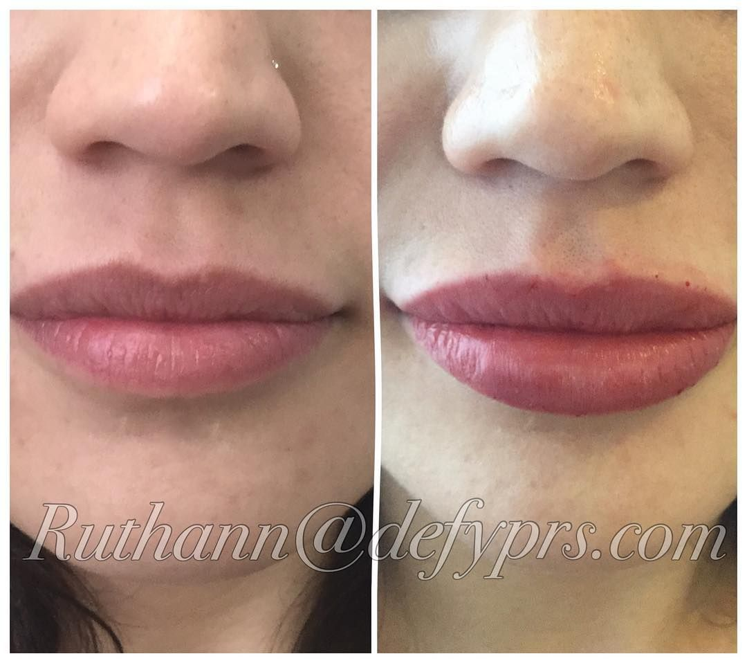 1 syringe of Juvederm Ultra XC lips, before and after  | Full Lips
