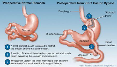 The Metabolic Bariatric Surgery Program At Mountsinai Is A