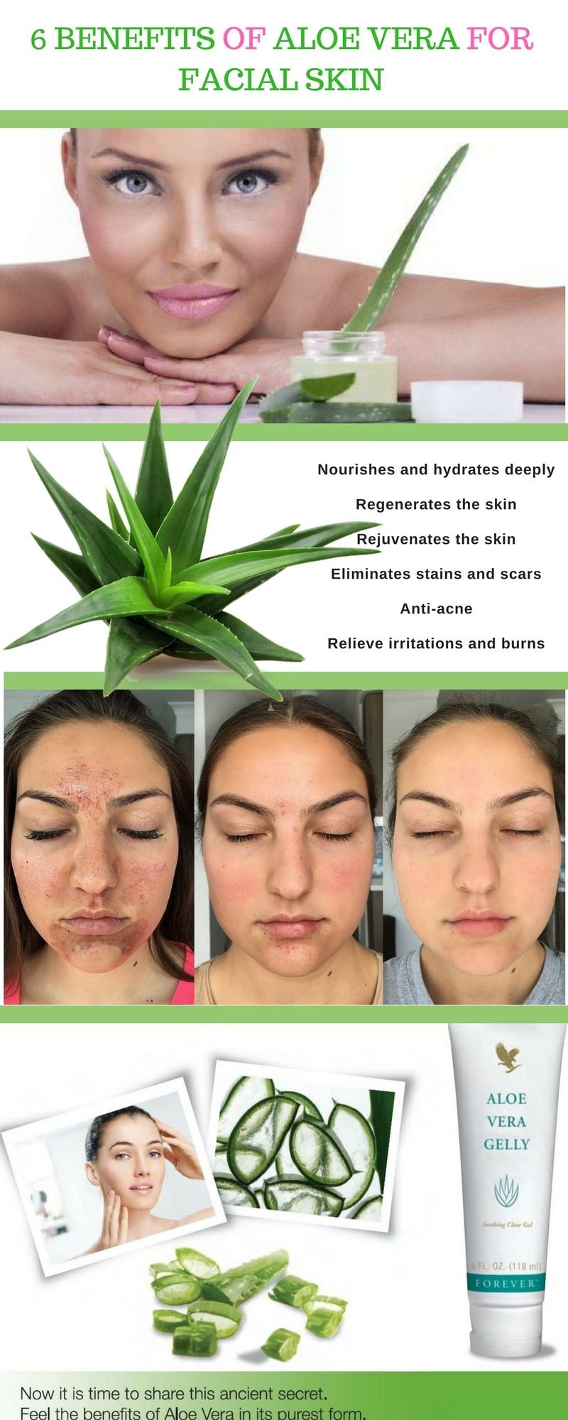 Benefits Of Aloe Vera For Facial Skin Skin Care Natural Health From Aloe Vera Plants Aloe Vera For Skin Aloe Vera Gelly Aloe Vera