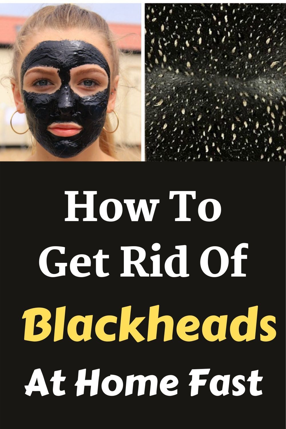 How to get rid of blackheads at home fast 7 home