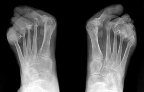 Rheumatoid Foot & Ankle Arthritis - Weil Foot & Ankle Institute ...