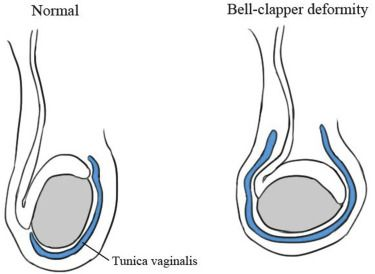 Bell clapper deformity and sexual health