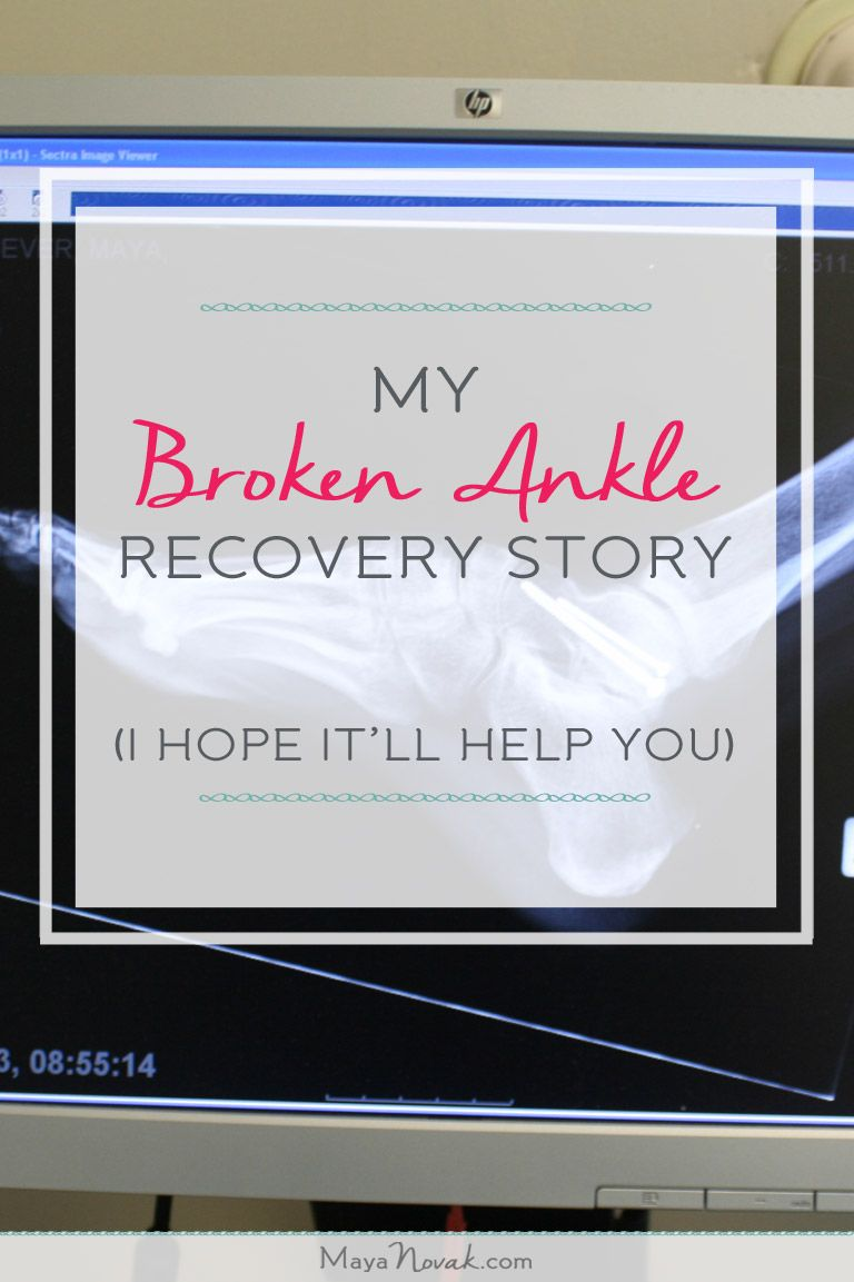 Broken ankle recovery story with a happy ending    | ankle down