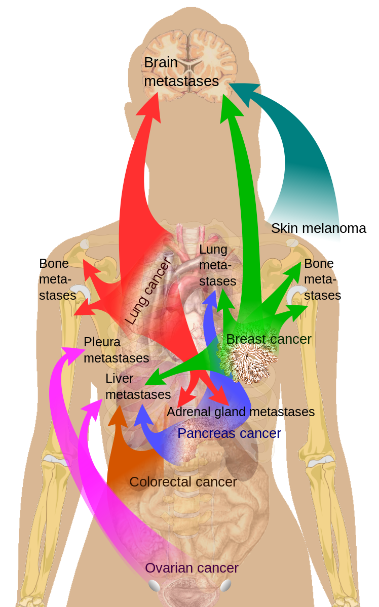 File:Metastasis sites for common cancers.svg   Natural Lung Cancer ...