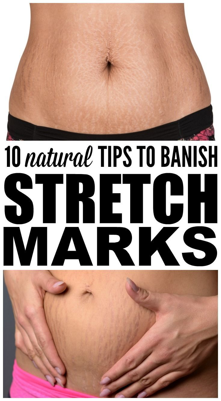 Streaks and Stripes 13 Natural Remedies for Stretch Marks