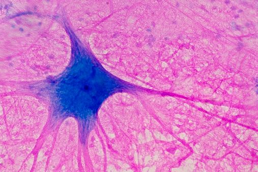 Motor Neuron (Multipolar) With Cell Body And Many