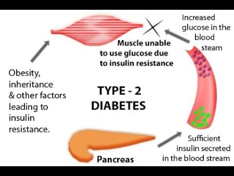 [Video] Want to know What exactly Causes Type 2 diabetes? This article lists all the Type 2 Diabetes Causes in detail.