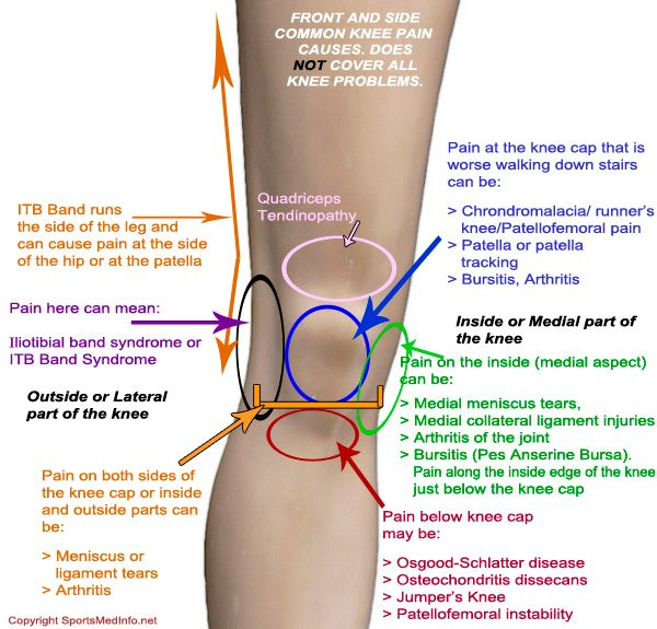 Knee pain chart where does it hurt and what is it beauty