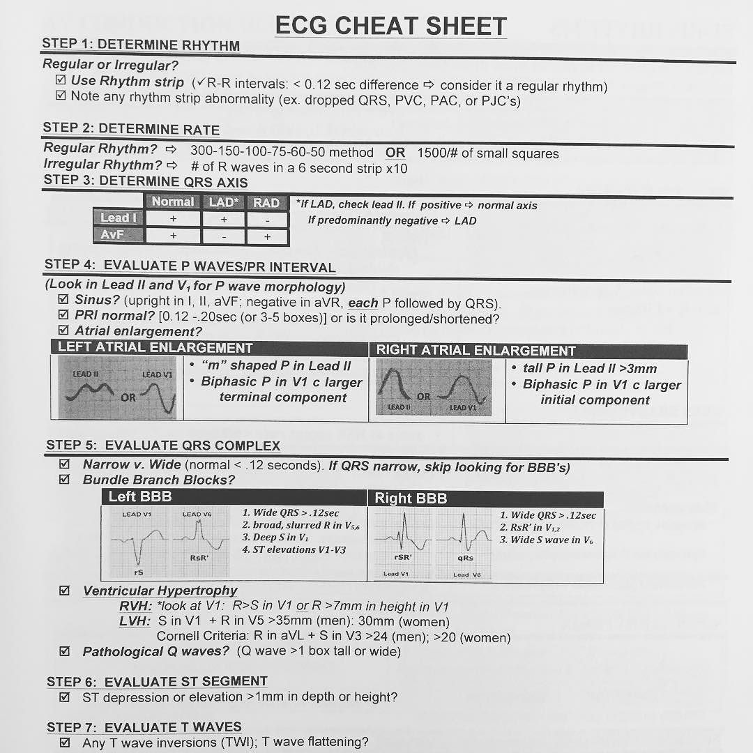 Who Couldn T Use Another Ekg Cheat Sheet Ekg Also Known