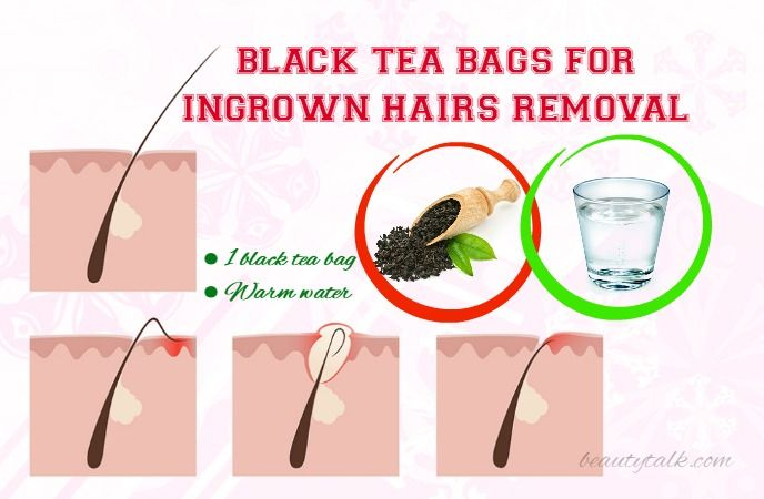 Do You Know How To Get Rid Of Ingrown Hairs Fast  U0026 Naturally  This Is What You Need To Know