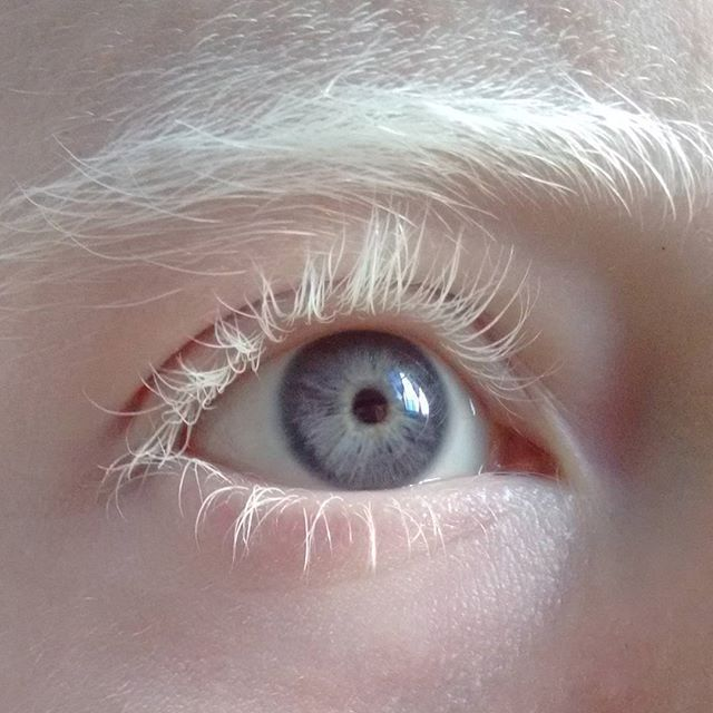 #ojo #albino #albinismo #albina #albino #rubymodel #ruby
