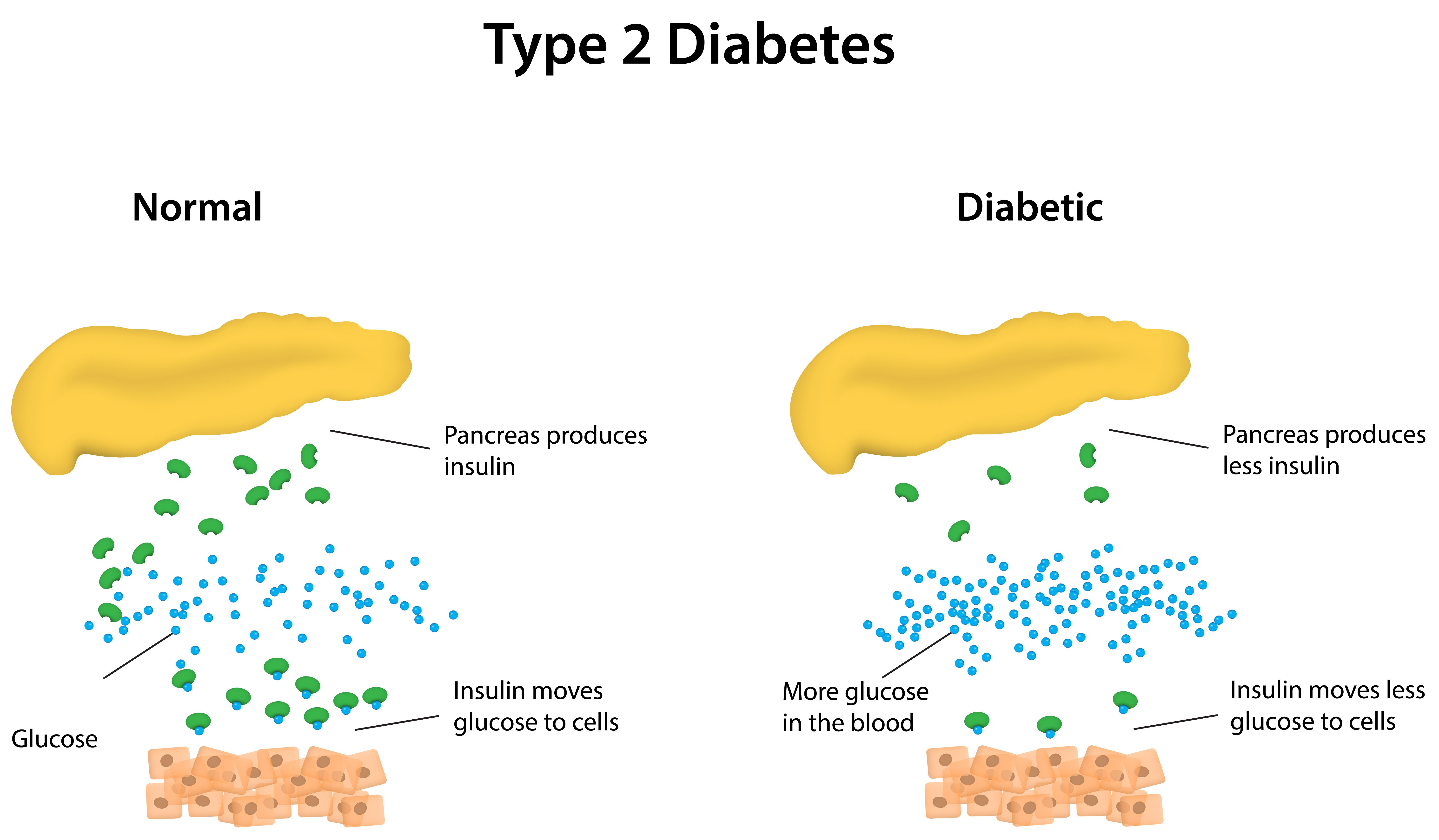 Type 2 Diabetes Patients Should Be Given Priority For Obesity