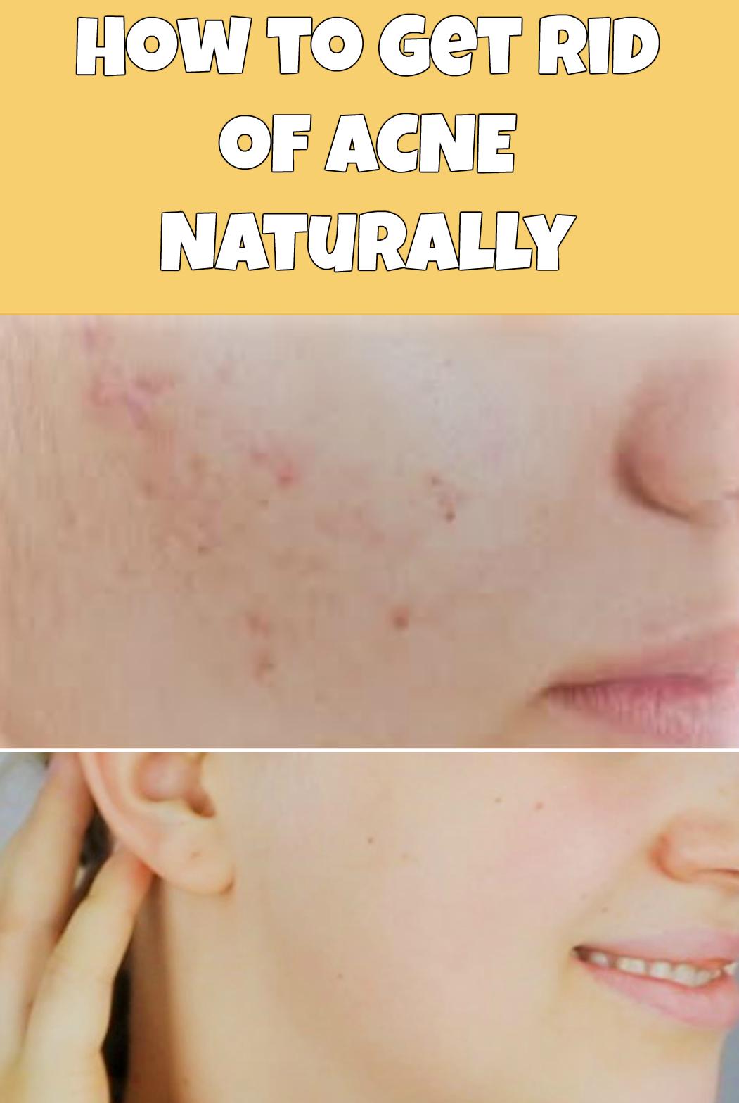 How to get rid of acne naturally diy do it yourself homemade homemade face masks solutioingenieria Choice Image